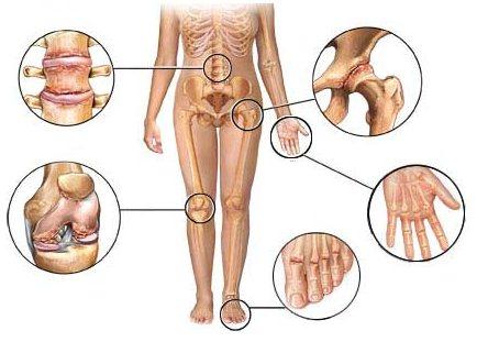 симптоми остеартроза