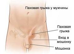 Паховая грыжа у мужчины - одна из причин болей в лобковой кости