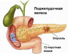 панкреатит сухость кожи Панкреатит - Причины, симптомы и лечение. МЖ.