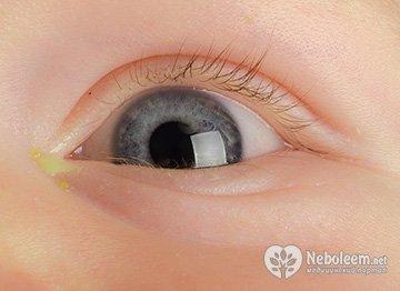 Кон'юнктивіт - запалення ока у дитини