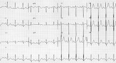 Серцева аритмія - один із симптомів гіперкаліємії