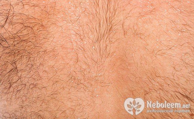 Рост волос на теле от миноксидила