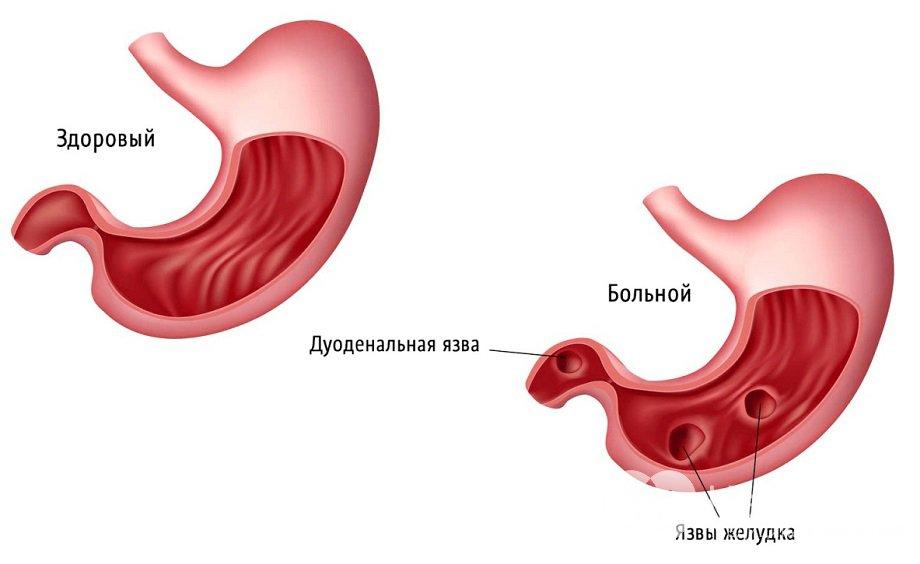 Диета при воспаленном кишечнике и желудке